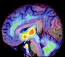 PET de cerebro