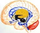 cerebro y disco